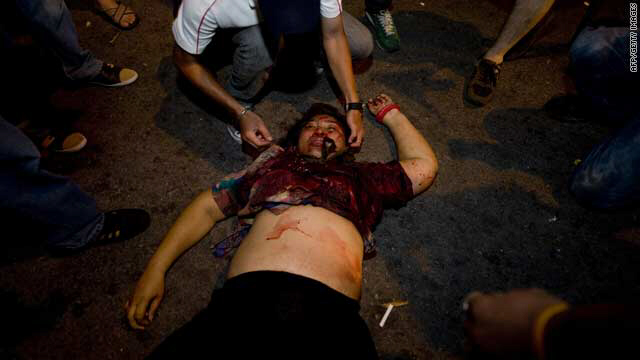 An injured Thai lies on the ground after a bomb blast