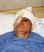 Dragica Pavlovic, 54, was attacked by ethnic Albanians with a bomb last week.