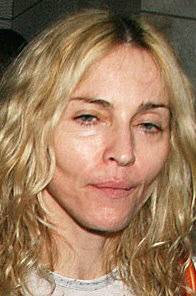 OMG ... Madonna looks like she has cancer or is dying ... what's going on ????